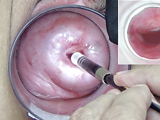 A endoscope japanese camera is inserted in the cervix to watch inside the uterus.
